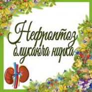 Нефроптоз (блукаюча нирка)